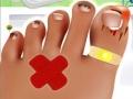 Лечить грибок на ногтях